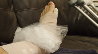 Icing On Foot Injury